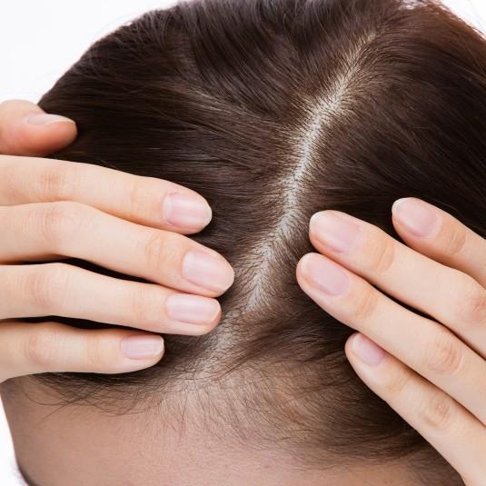 頭皮ケアをキチンとすれば、髪は元気になってくる!