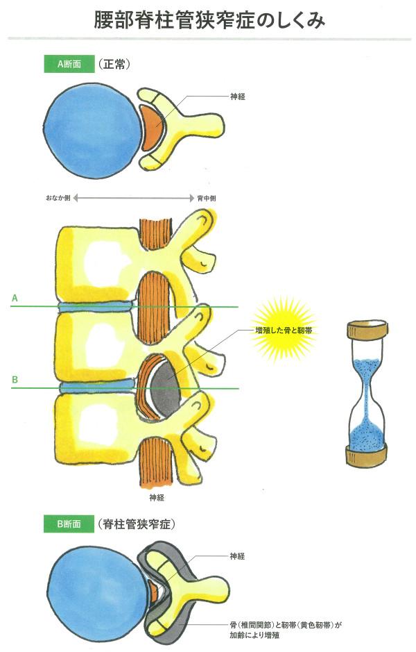 腰部脊中館狭窄症